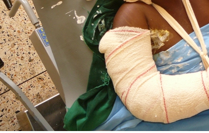 Le maire de Taïf après avoir cassé le bras de son épouse : « Elle voulait se suicider …et je l'ai  sauvée »